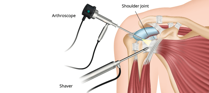 Shoulder-Arthroscopy